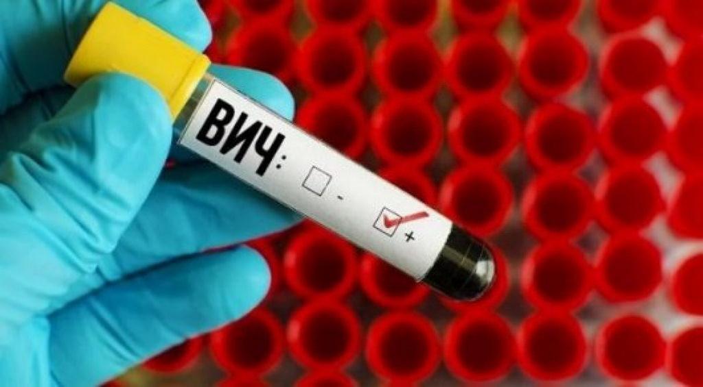 Граждане Алтая могут пройти бесплатное тестирование наВИЧ