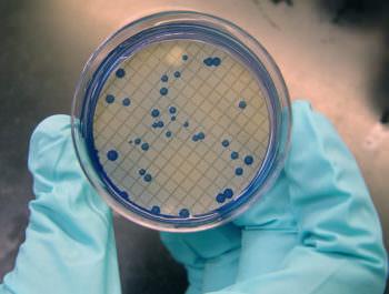 бактерии группы кишечной палочки